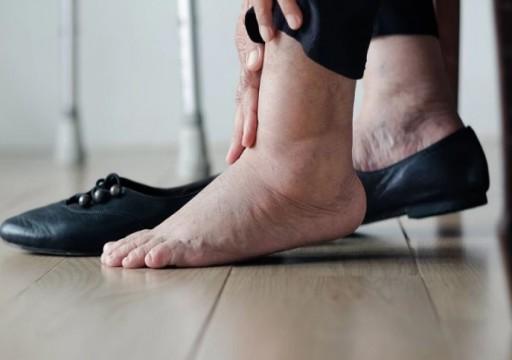 تورم الساقين.. الأسباب والعلاج