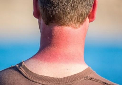 9 نصائح لحماية بشرتك من أشعة الشمس الضارة