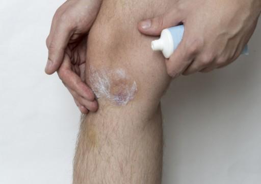ما هي أسباب ظهور الكدمات المفاجئة على الجسم؟