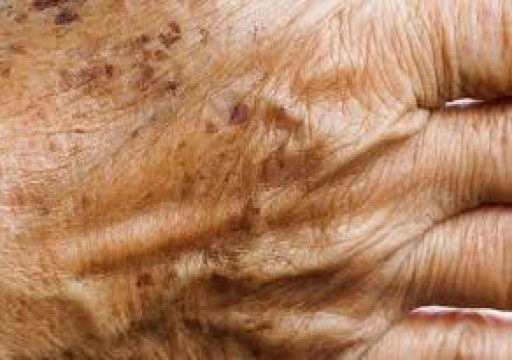 دراسة تكشف عن دواء تثبيط للمناعة يوقف شيخوخة الجلد