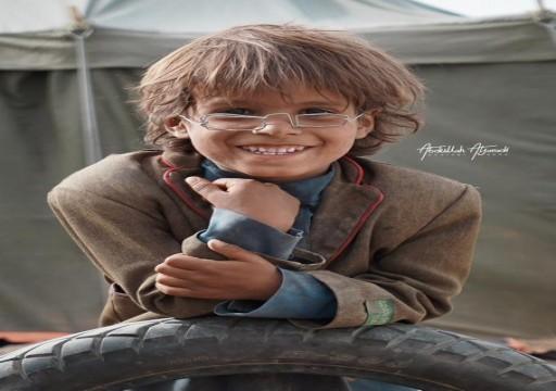 بيع نظارة طفل يمني نازح بـ4300 دولار