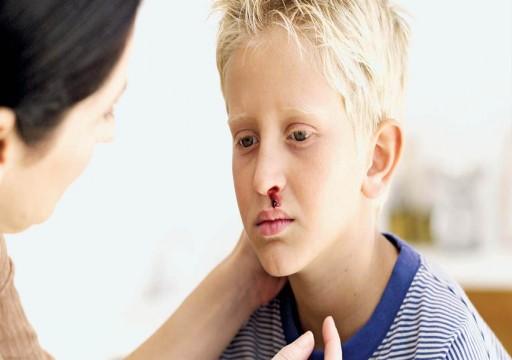 نزيف الأنف لدى الأطفال.. الأسباب وطرق العلاج