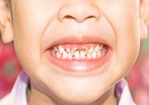 دراسة: إصابة أسنان الأطفال بالتسوس لا ترتبط بعوامل وراثية