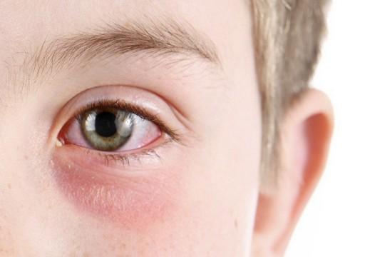هكذا يدخل فيروس كورونا إلى العين.. كيف يمكنك حماية نفسك؟