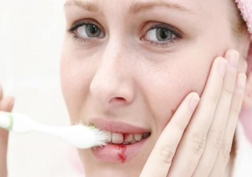 5 علاجات منزلية للتخفيف من آلام الأسنان