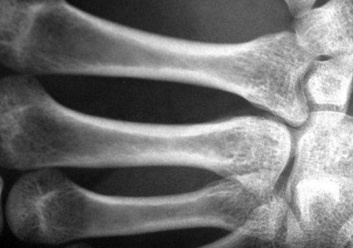 هشاشة العظام.. الأسباب والعلاج