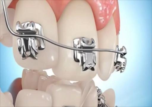 6 نصائح للحفاظ على نظافة الأسنان مع وجود التقويم