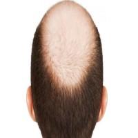 اكتشاف علاج جديد يعزز نمو الشعر ويقضي على الصلع