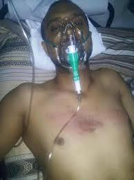 الحوثيون يعذبون المعارضين على طريقة النظام الإيراني