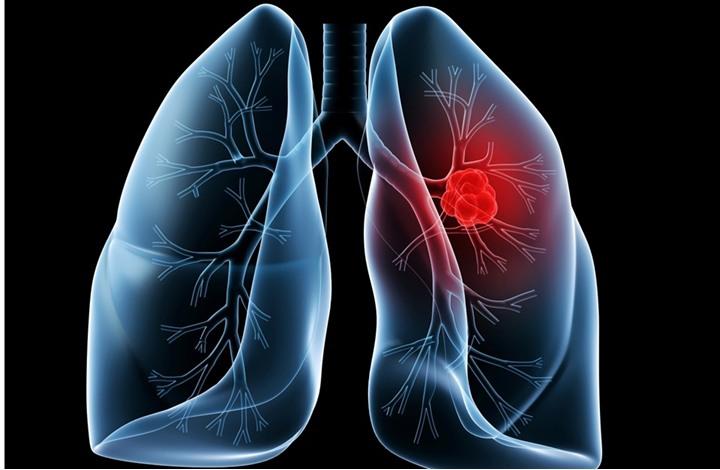 عقار يثبت فاعليته في علاج سرطان الرئة