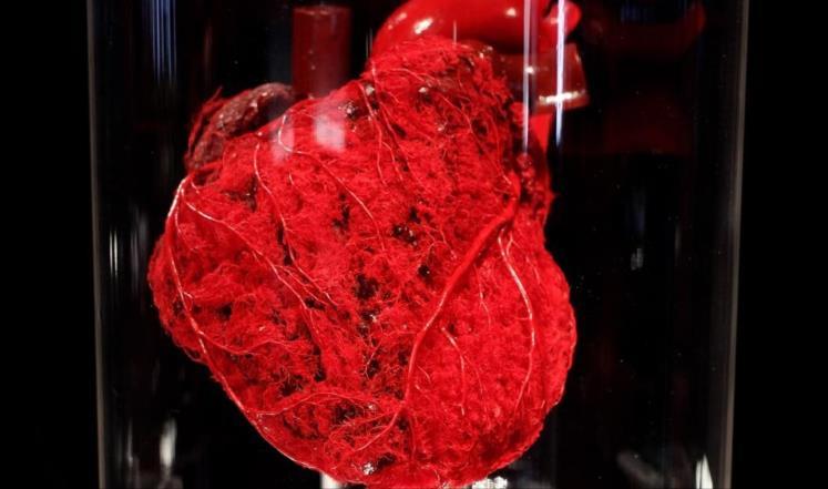 باحثون: ارتفاع الوزن قد يغير شكل القلب